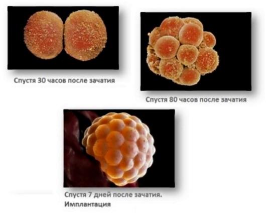 Фото - Размер эмбриона по неделям: таблицы с описанием. Как определяют размеры плода по неделям беременности с помощью УЗИ?